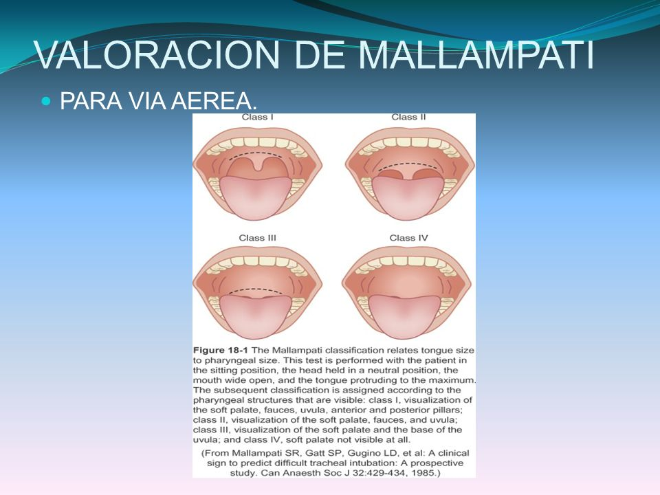 VALORACION DE MALLAMPATI PARA VIA AEREA.