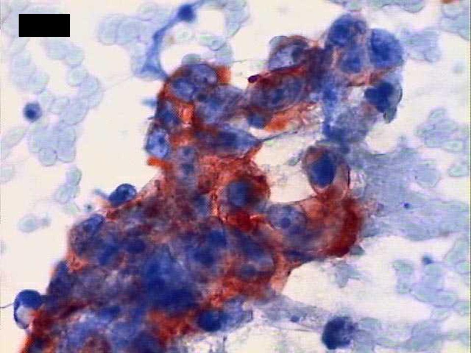 Logística de Estudio Lesiones Neoplásicas Citopatología Citopatólogo DX. Diferencial Grupos Morfológicos I. Epitelioides II. Fusocelulares III. Mixtos