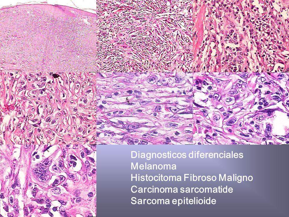 Historia Clinica 1 Paciente masculino campesino de 58 años de edad con tumor en region cervical Tele de Torax normal TAC normal Estudios de laboratrio