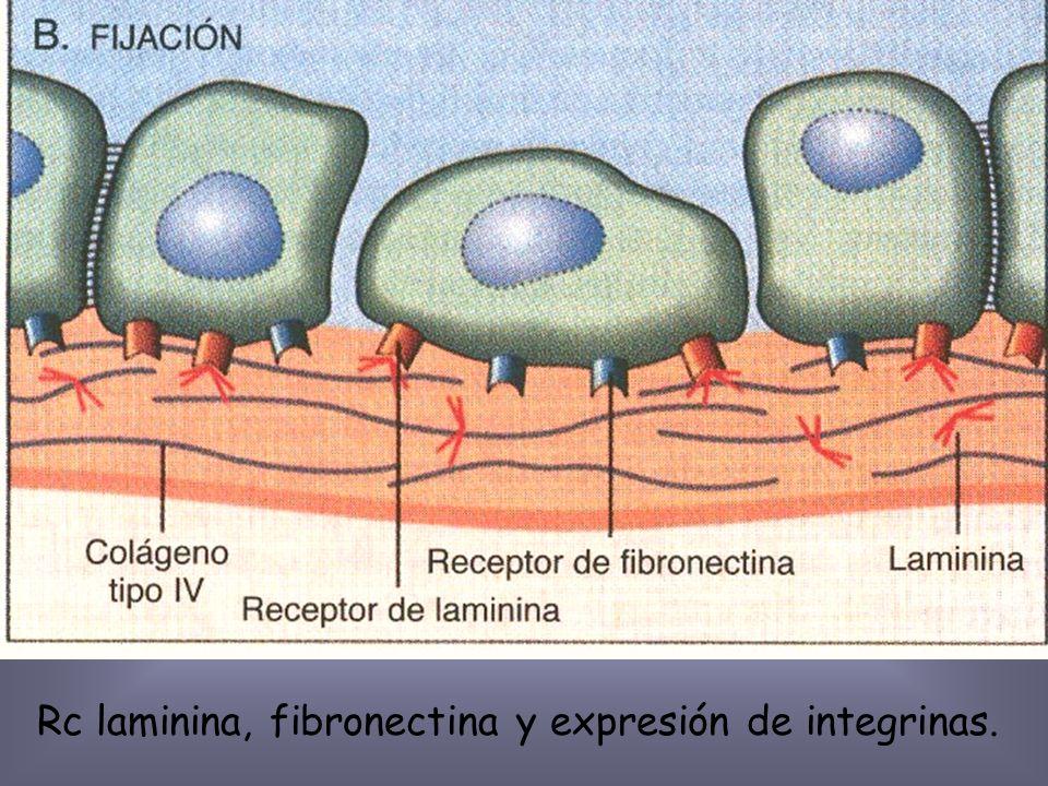 Disminución de cadherina E r/o Mutación cateninas.