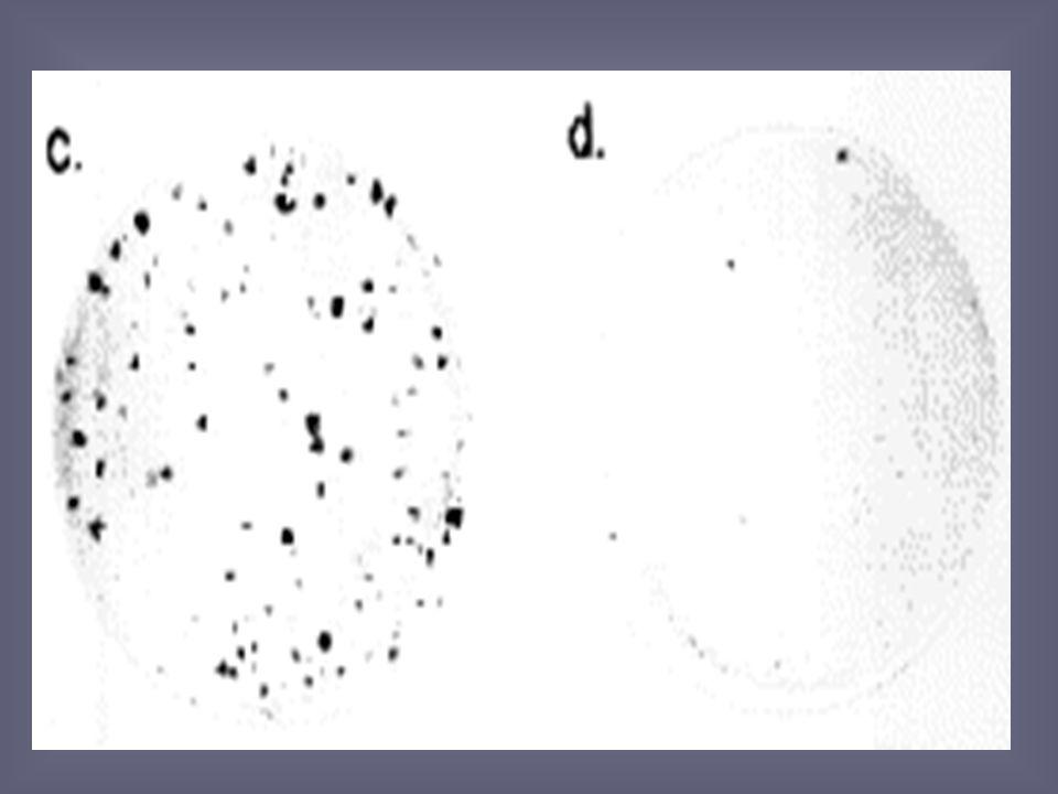 Gen supresor tumoral Alteración de la funcionalidad de ambos alelos de un gen que regula la diferenciación celular o la supervivencia la pérdida de es