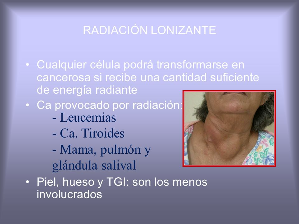 XERODERMA PIGMENTOSUM Autosómico recesivo Fotosensibilidad extrema riesgo ca(2000 veces) Anomalías neurológicas Incapacidad p/reparar DNA por lesiones