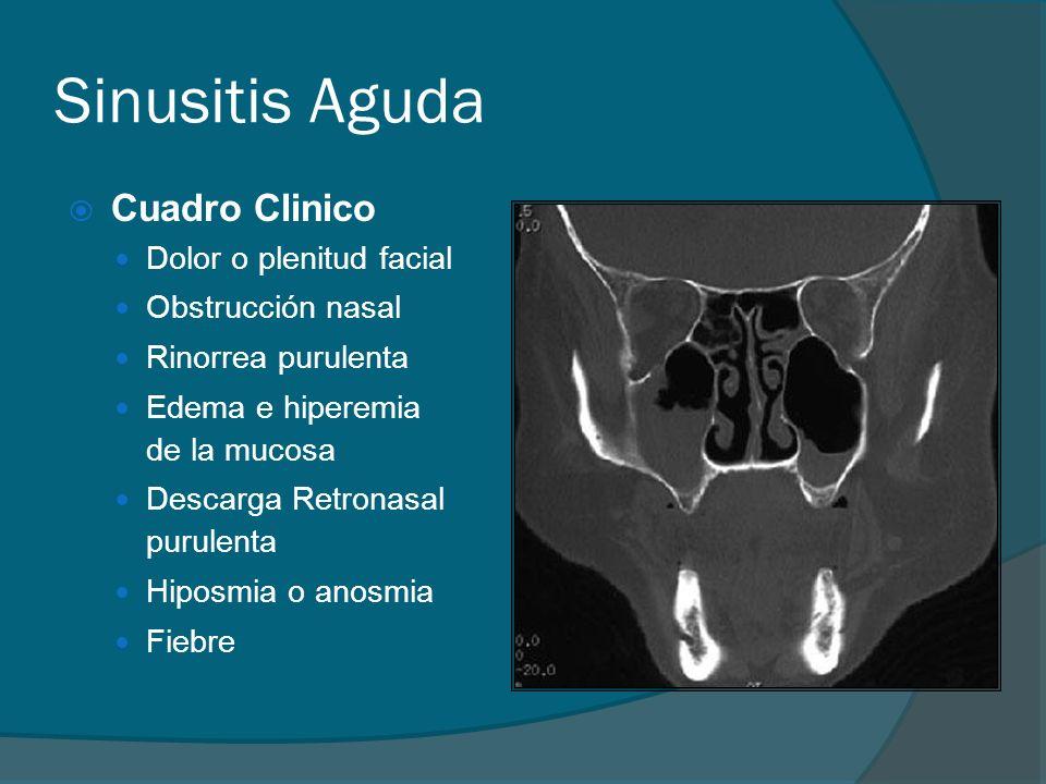 Sinusitis Aguda Cuadro Clinico Dolor o plenitud facial Obstrucción nasal Rinorrea purulenta Edema e hiperemia de la mucosa Descarga Retronasal purulen