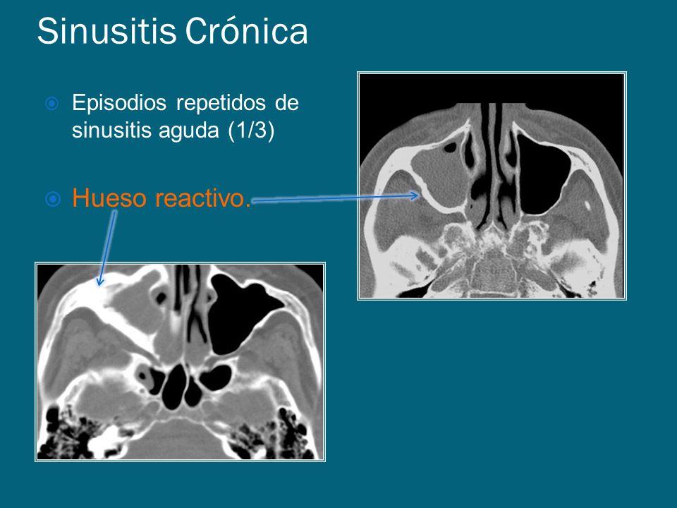 Sinusitis Crónica Episodios repetidos de sinusitis aguda (1/3) Hueso reactivo.