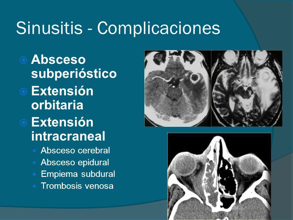 Sinusitis - Complicaciones Absceso subperióstico Extensión orbitaria Extensión intracraneal Absceso cerebral Absceso epidural Empiema subdural Trombos