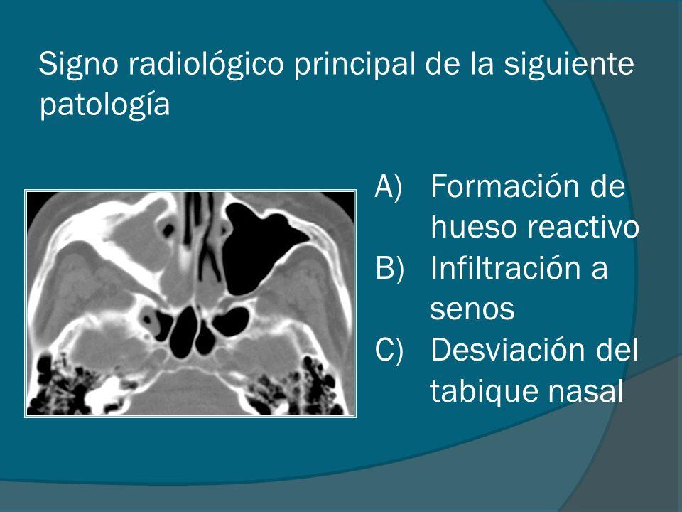 Signo radiológico principal de la siguiente patología A)Formación de hueso reactivo B)Infiltración a senos C)Desviación del tabique nasal
