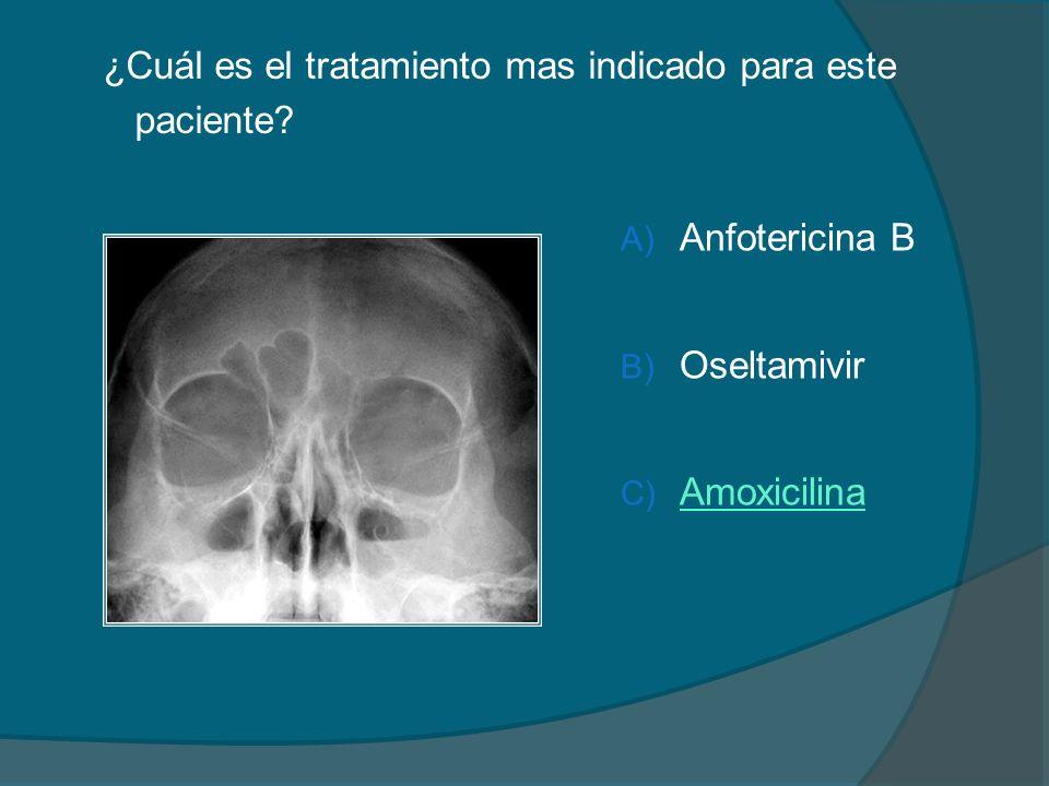 ¿Cuál es el tratamiento mas indicado para este paciente? A) Anfotericina B B) Oseltamivir C) Amoxicilina