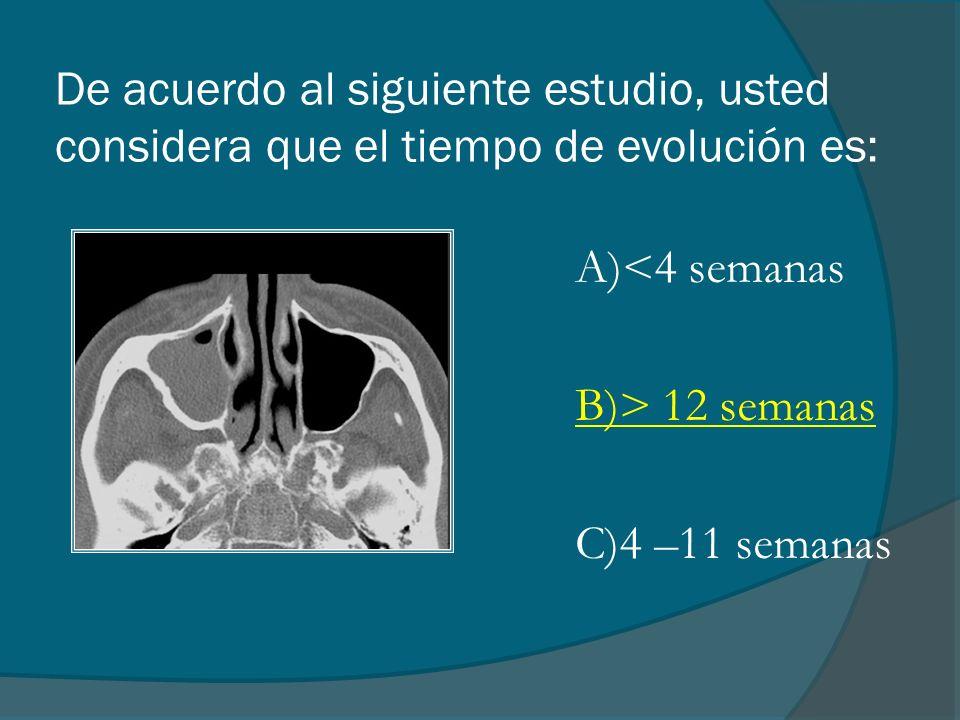 De acuerdo al siguiente estudio, usted considera que el tiempo de evolución es: A)<4 semanas B)> 12 semanas C)4 –11 semanas