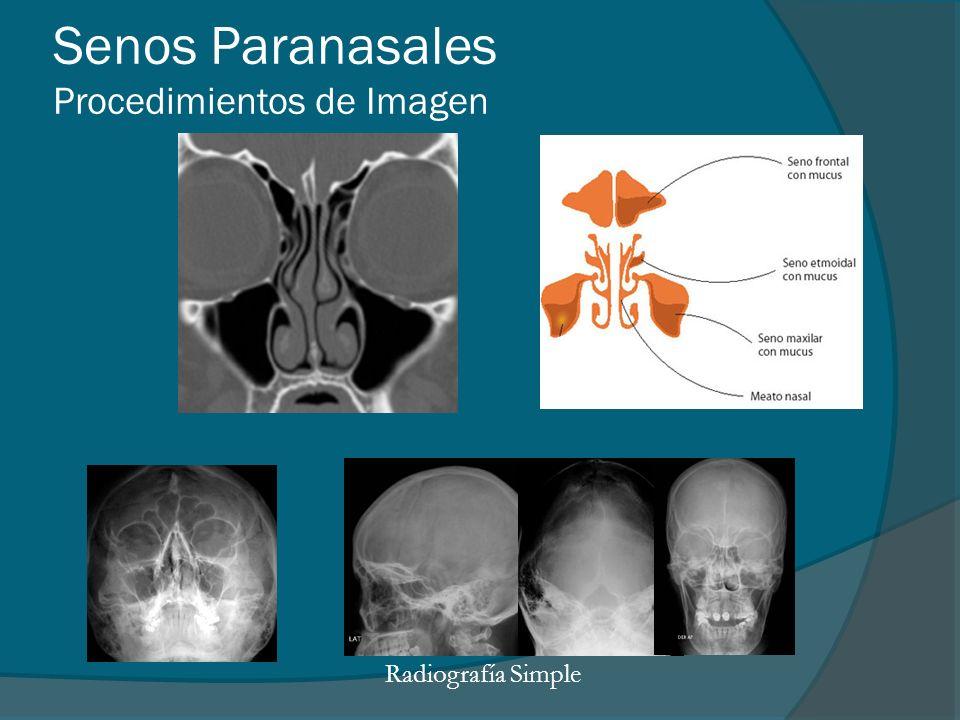 Senos Paranasales Procedimientos de Imagen Radiografía Simple
