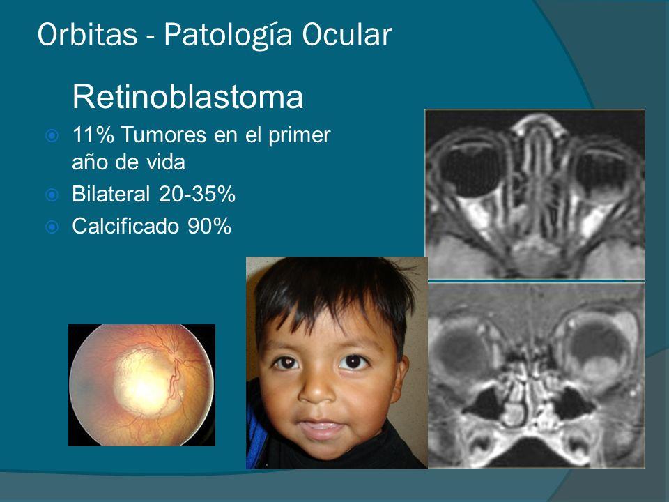 Orbitas - Patología Ocular Retinoblastoma 11% Tumores en el primer año de vida Bilateral 20-35% Calcificado 90%