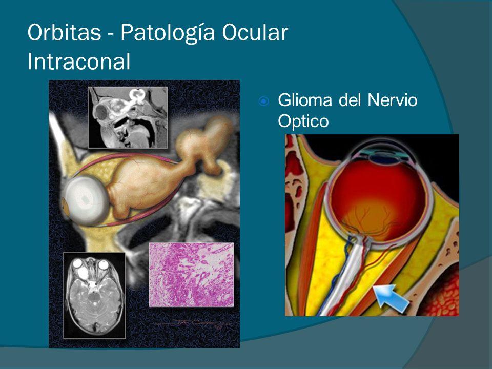 Orbitas - Patología Ocular Intraconal Glioma del Nervio Optico