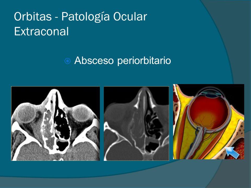 Orbitas - Patología Ocular Extraconal Absceso periorbitario