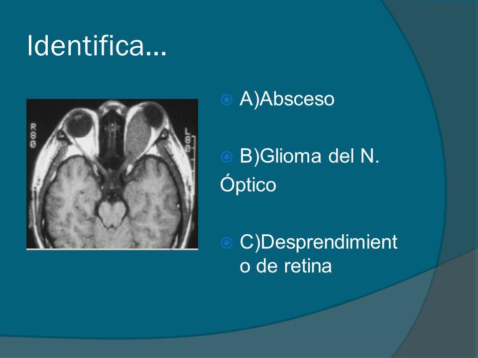 Identifica… A)Absceso B)Glioma del N. Óptico C)Desprendimient o de retina