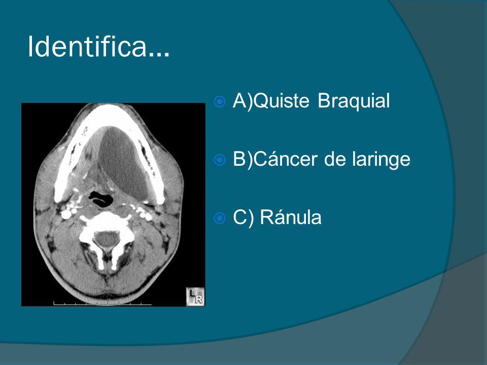 Identifica… A)Quiste Braquial B)Cáncer de laringe C) Ránula
