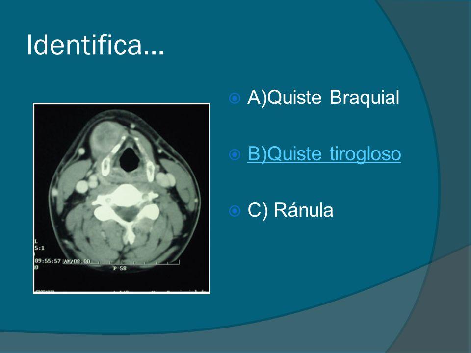 Identifica… A)Quiste Braquial B)Quiste tirogloso C) Ránula