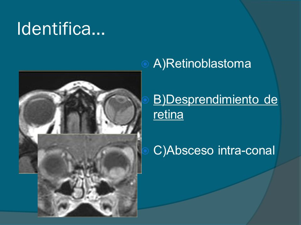 Identifica… A)Retinoblastoma B)Desprendimiento de retina C)Absceso intra-conal