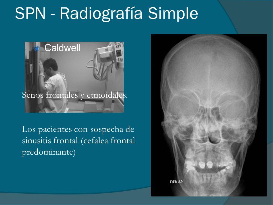 SPN - Radiografía Simple Caldwell Senos frontales y etmoidales. Los pacientes con sospecha de sinusitis frontal (cefalea frontal predominante)