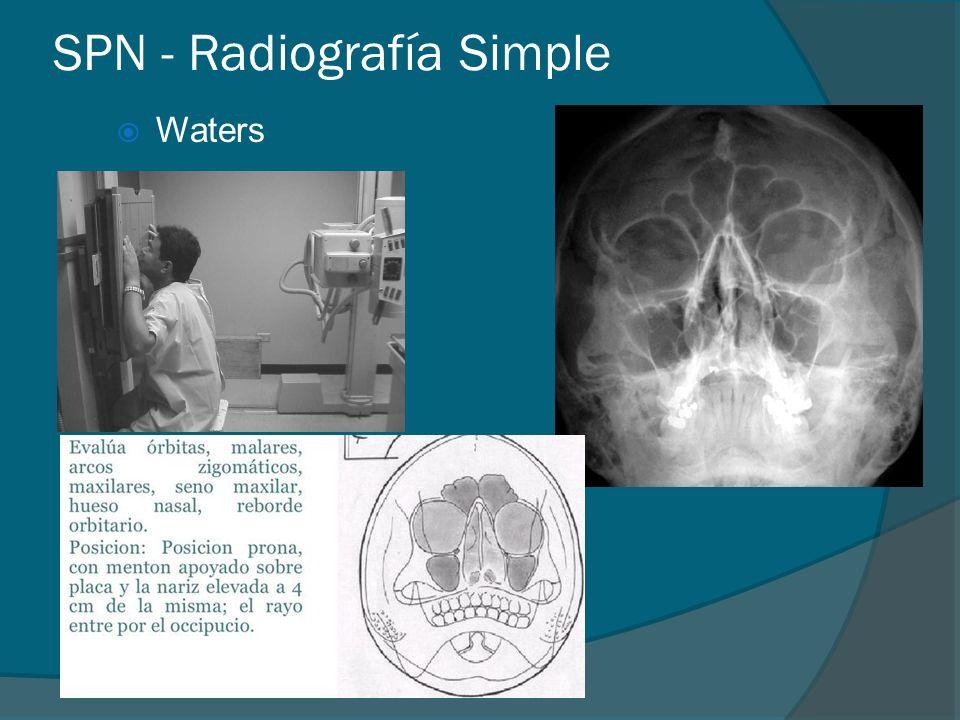 SPN - Radiografía Simple Waters