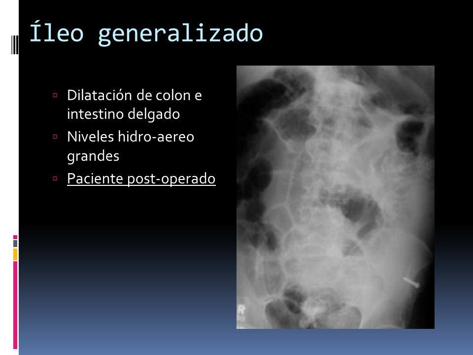 Íleo generalizado Dilatación de colon e intestino delgado Niveles hidro-aereo grandes Paciente post-operado