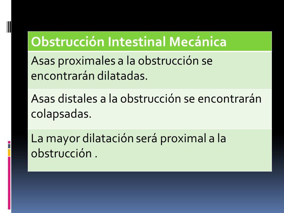 Obstrucción Intestinal Mecánica Asas proximales a la obstrucción se encontrarán dilatadas. Asas distales a la obstrucción se encontrarán colapsadas. L