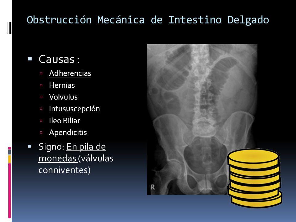 Obstrucción Mecánica de Intestino Delgado Causas : Adherencias Hernias Volvulus Intususcepción Ileo Biliar Apendicitis Signo: En pila de monedas (válv