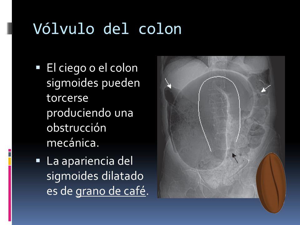 Vólvulo del colon El ciego o el colon sigmoides pueden torcerse produciendo una obstrucción mecánica. La apariencia del sigmoides dilatado es de grano
