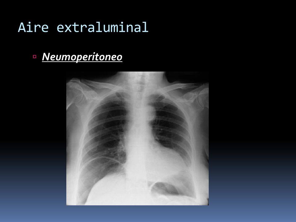 Aire extraluminal Neumoperitoneo