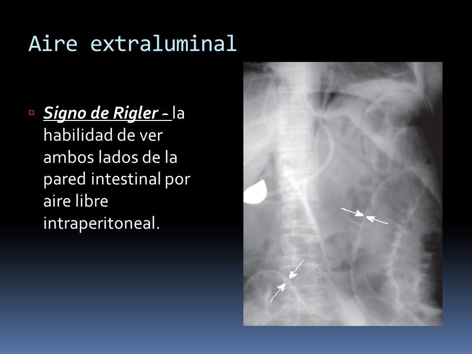 Aire extraluminal Signo de Rigler - la habilidad de ver ambos lados de la pared intestinal por aire libre intraperitoneal.