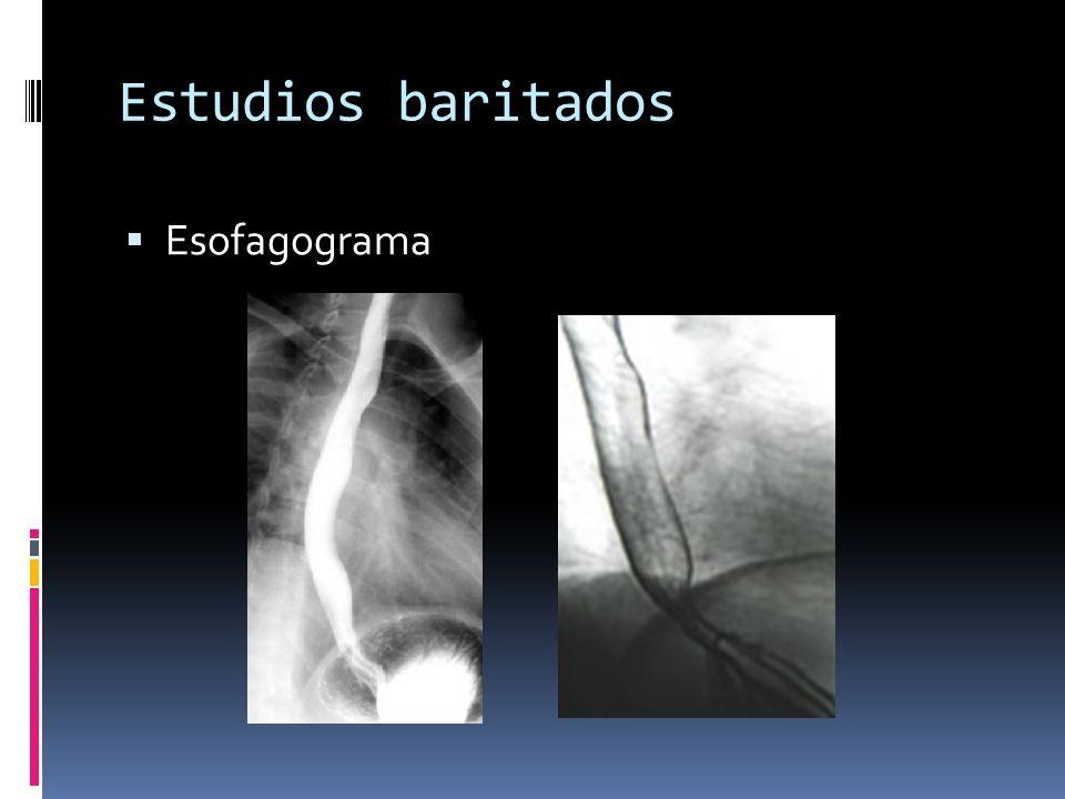 Estudios baritados Esofagograma