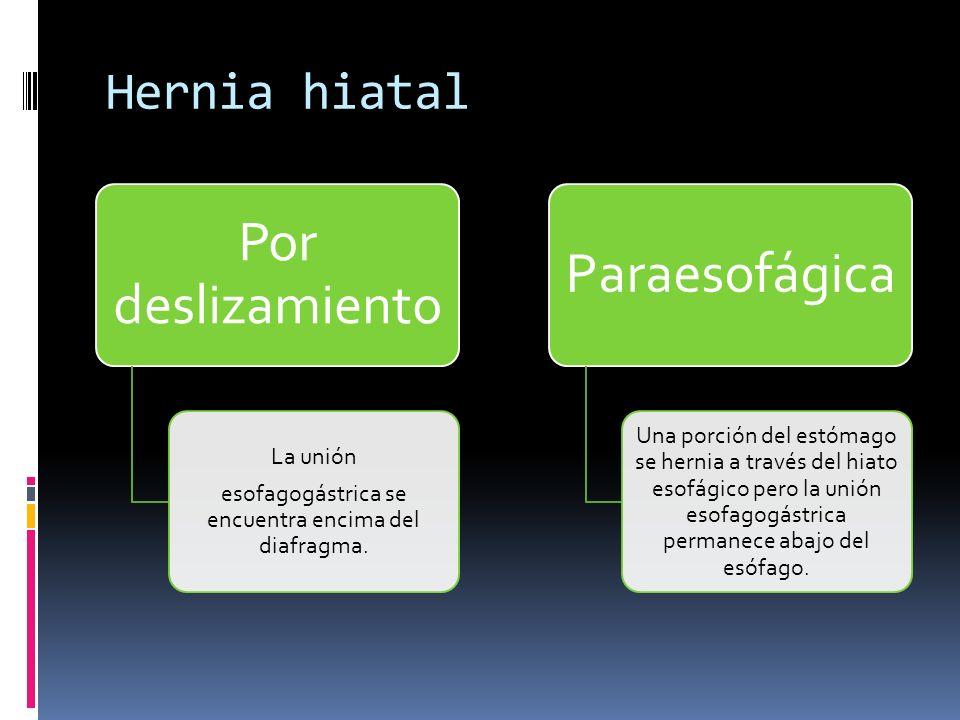 Hernia hiatal Por deslizamiento La unión esofagogástrica se encuentra encima del diafragma. Paraesofágica Una porción del estómago se hernia a través