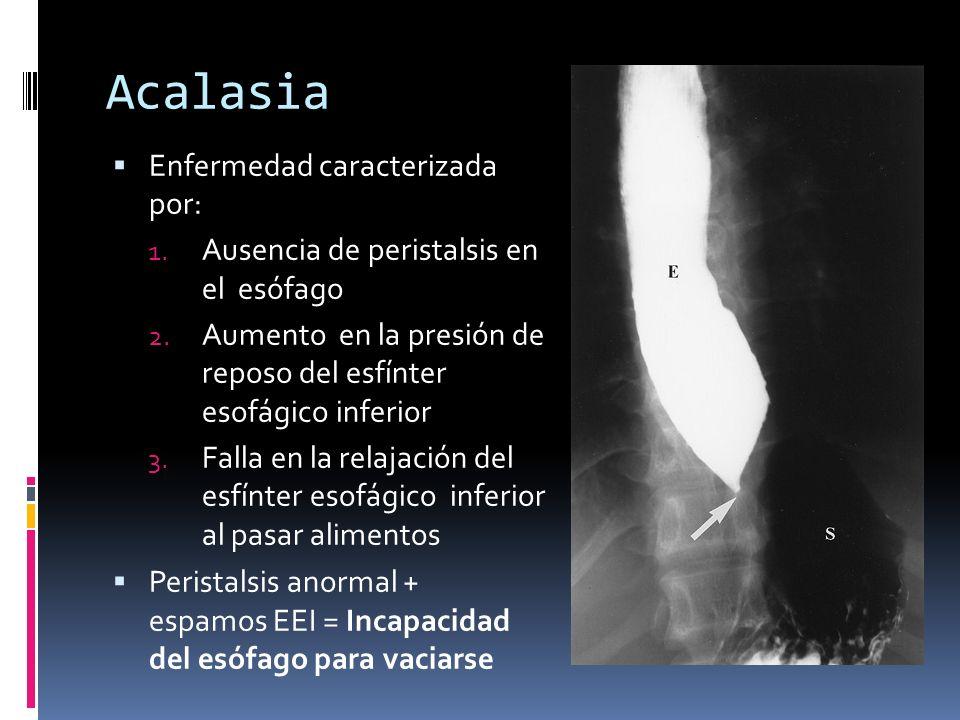 Acalasia Enfermedad caracterizada por: 1. Ausencia de peristalsis en el esófago 2. Aumento en la presión de reposo del esfínter esofágico inferior 3.