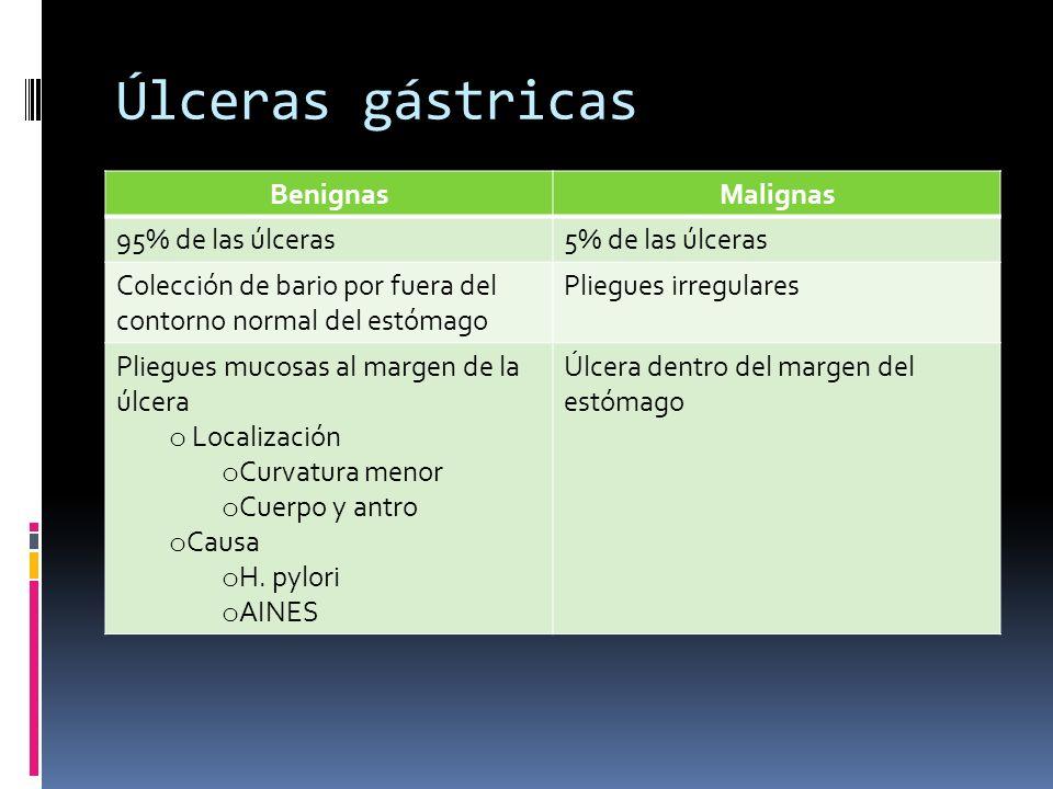 Úlceras gástricas BenignasMalignas 95% de las úlceras5% de las úlceras Colección de bario por fuera del contorno normal del estómago Pliegues irregula