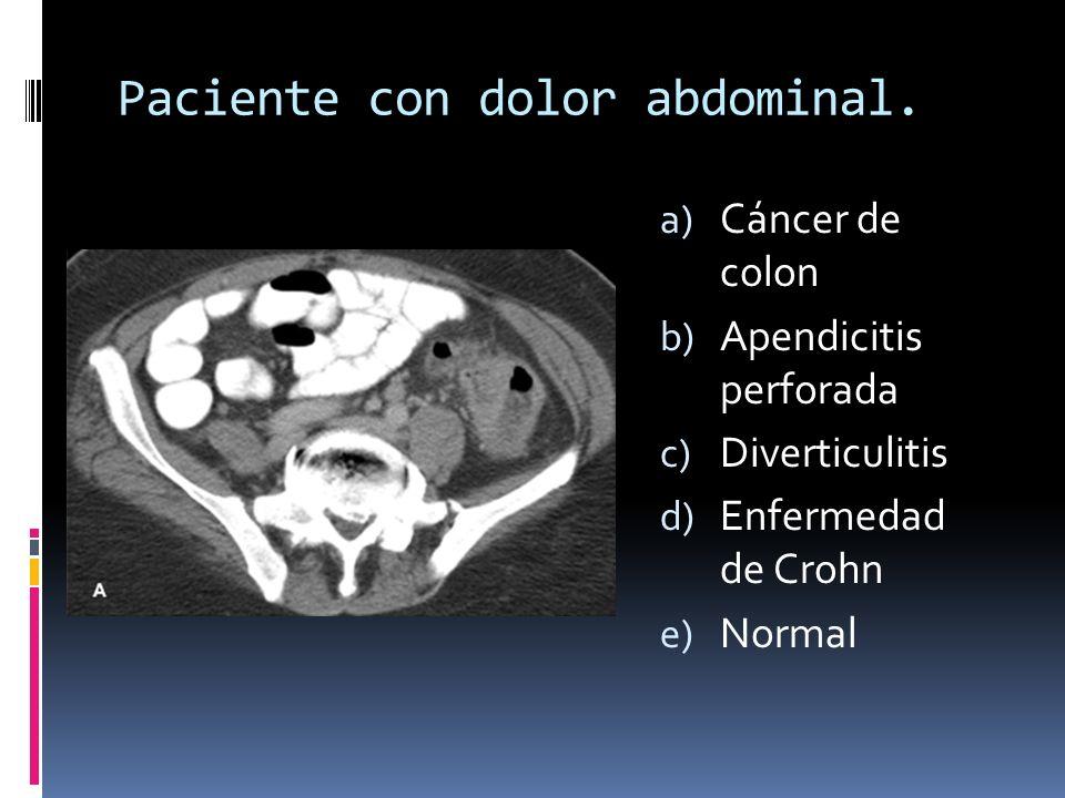 Paciente con dolor abdominal. a) Cáncer de colon b) Apendicitis perforada c) Diverticulitis d) Enfermedad de Crohn e) Normal
