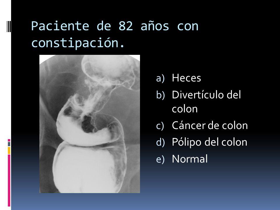 Paciente de 82 años con constipación. a) Heces b) Divertículo del colon c) Cáncer de colon d) Pólipo del colon e) Normal