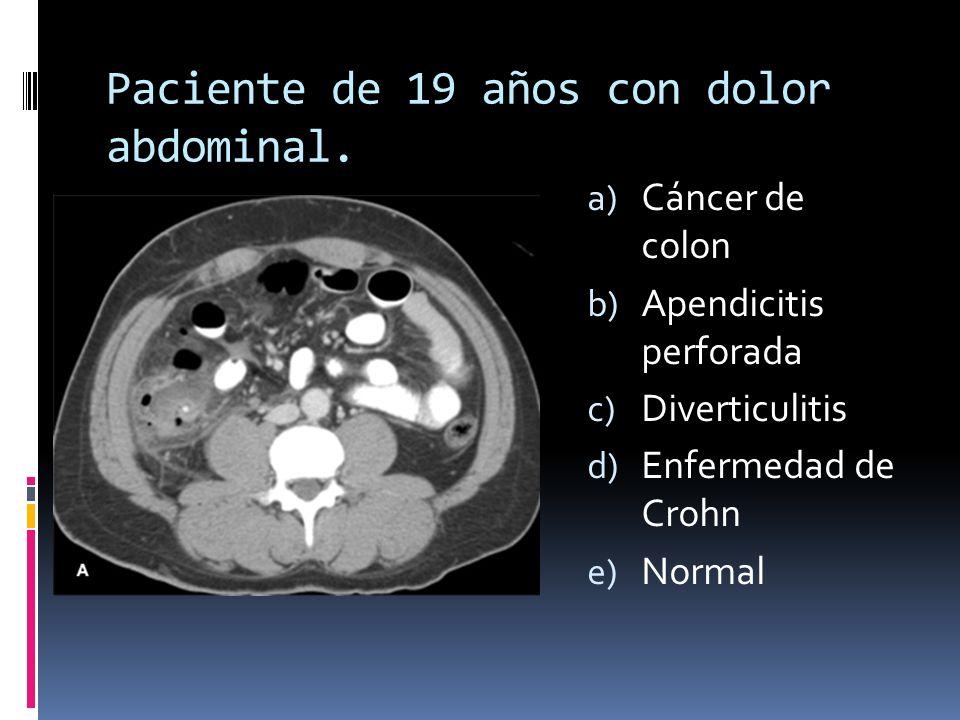 Paciente de 19 años con dolor abdominal. a) Cáncer de colon b) Apendicitis perforada c) Diverticulitis d) Enfermedad de Crohn e) Normal