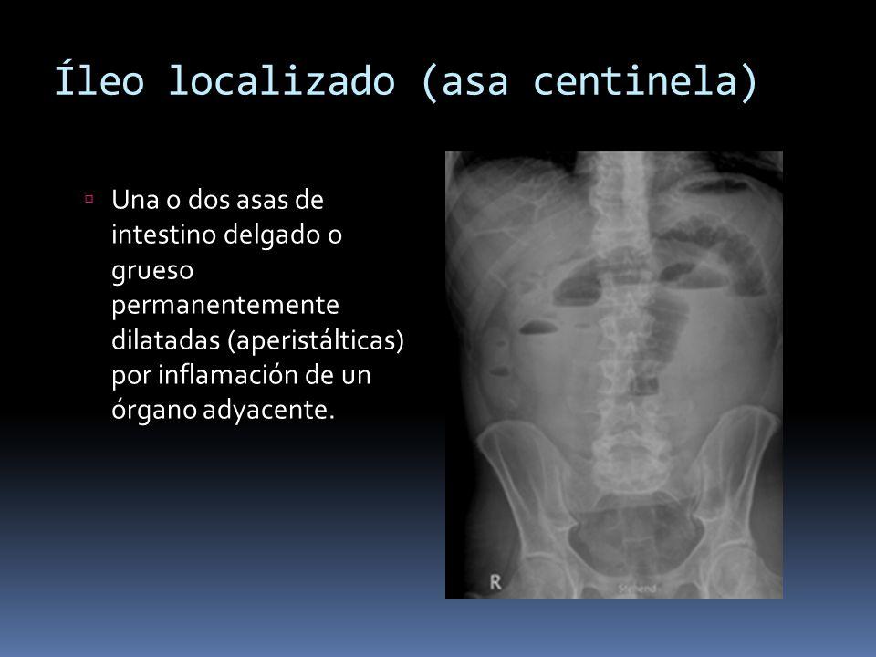 Íleo localizado (asa centinela) Una o dos asas de intestino delgado o grueso permanentemente dilatadas (aperistálticas) por inflamación de un órgano a