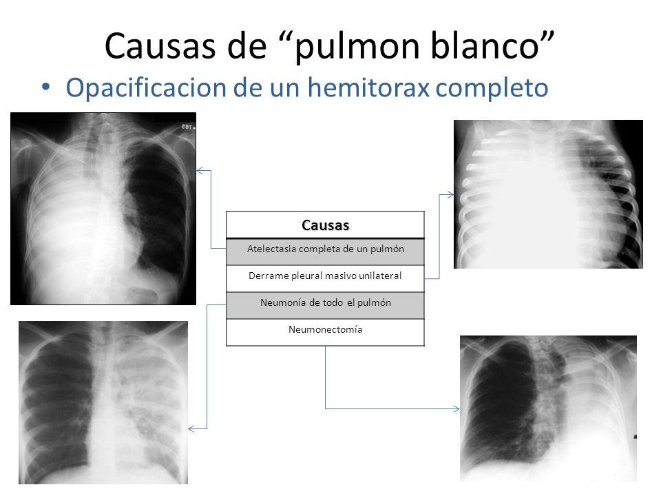 Causas de pulmon blanco Opacificacion de un hemitorax completo Causas Atelectasia completa de un pulmón Derrame pleural masivo unilateral Neumonía de