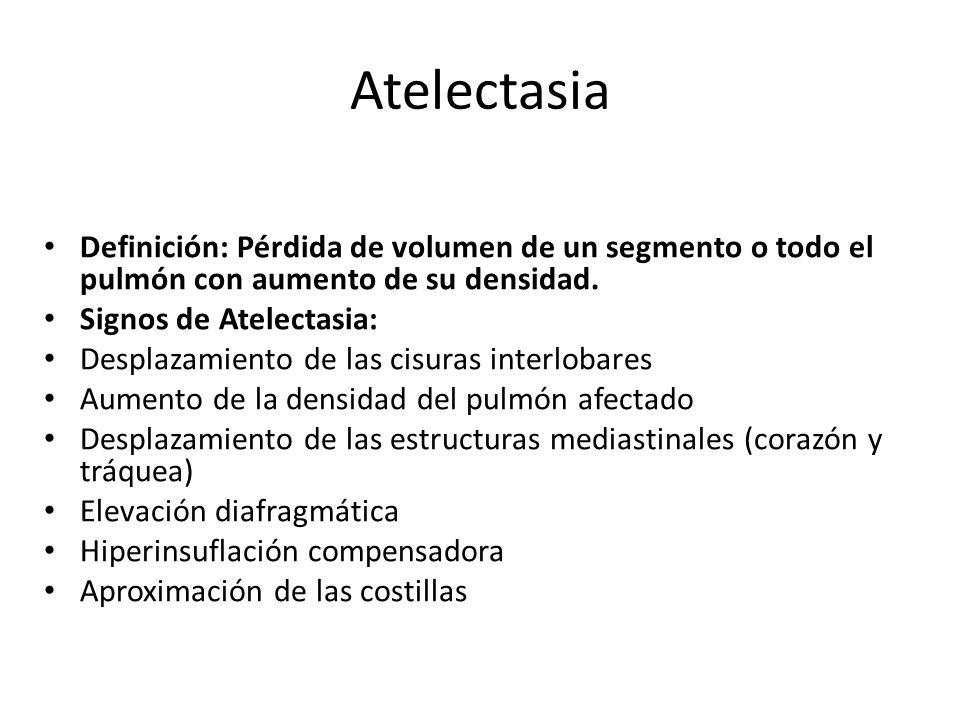 Atelectasia Definición: Pérdida de volumen de un segmento o todo el pulmón con aumento de su densidad. Signos de Atelectasia: Desplazamiento de las ci