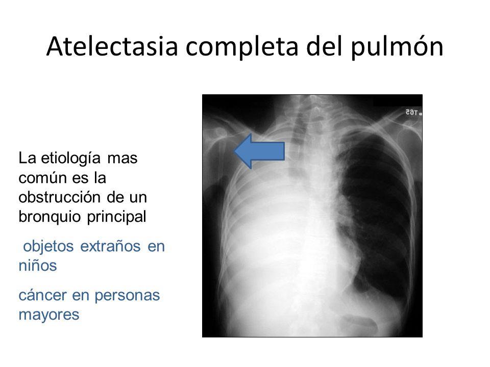 Atelectasia completa del pulmón La etiología mas común es la obstrucción de un bronquio principal objetos extraños en niños cáncer en personas mayores