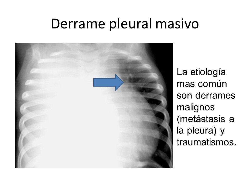 Derrame pleural masivo La etiología mas común son derrames malignos (metástasis a la pleura) y traumatismos.