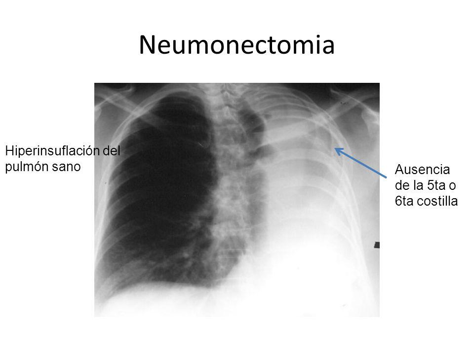 Neumonectomia Hiperinsuflación del pulmón sano Ausencia de la 5ta o 6ta costilla