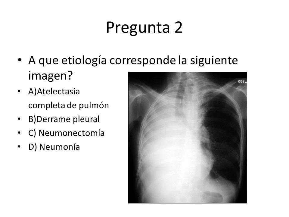 Pregunta 2 A que etiología corresponde la siguiente imagen? A)Atelectasia completa de pulmón B)Derrame pleural C) Neumonectomía D) Neumonía