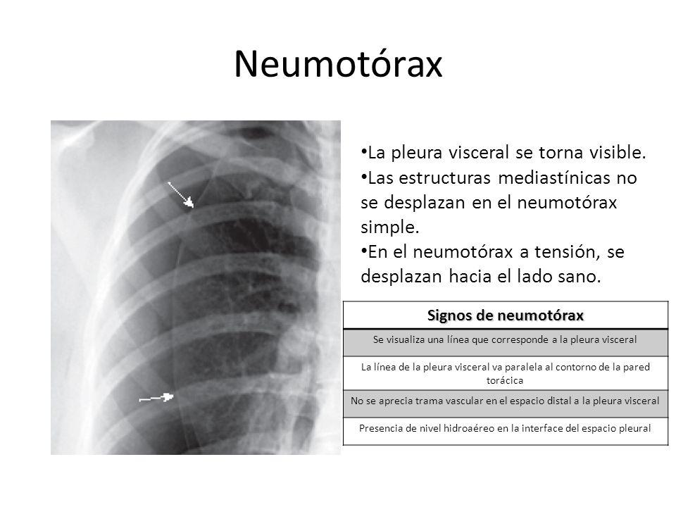Neumotórax Signos de neumotórax Se visualiza una línea que corresponde a la pleura visceral La línea de la pleura visceral va paralela al contorno de