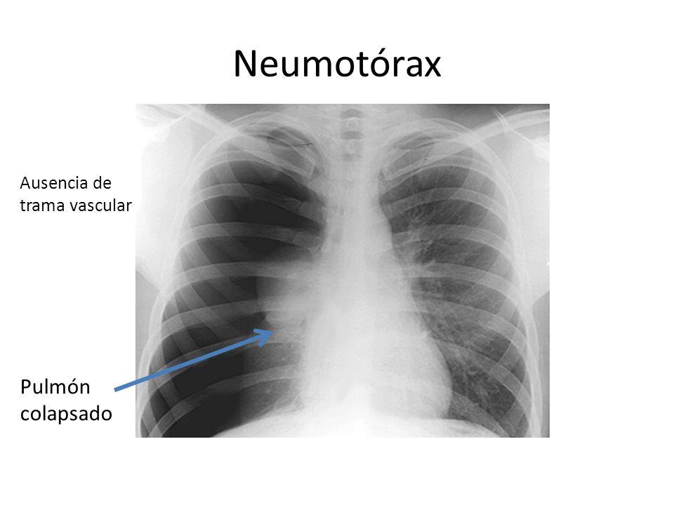 Neumotórax Ausencia de trama vascular Pulmón colapsado