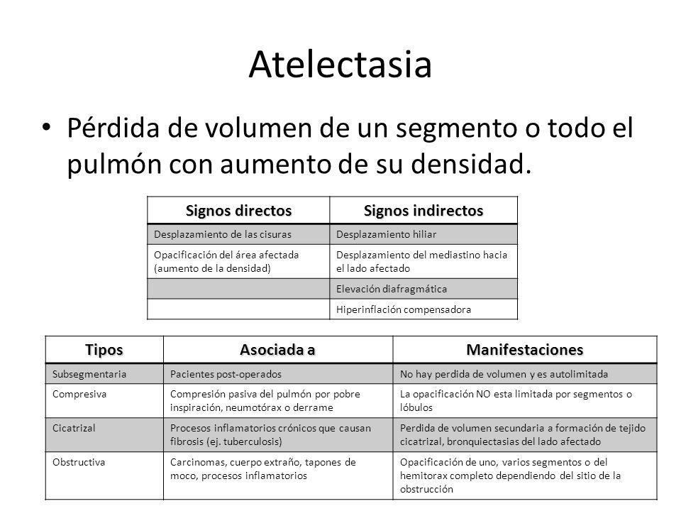 Atelectasia Pérdida de volumen de un segmento o todo el pulmón con aumento de su densidad. Signos directos Signos indirectos Desplazamiento de las cis