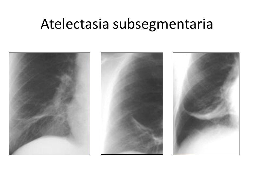 Atelectasia subsegmentaria