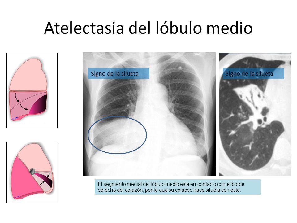 Atelectasia del lóbulo medio El segmento medial del lóbulo medio esta en contacto con el borde derecho del corazón, por lo que su colapso hace silueta