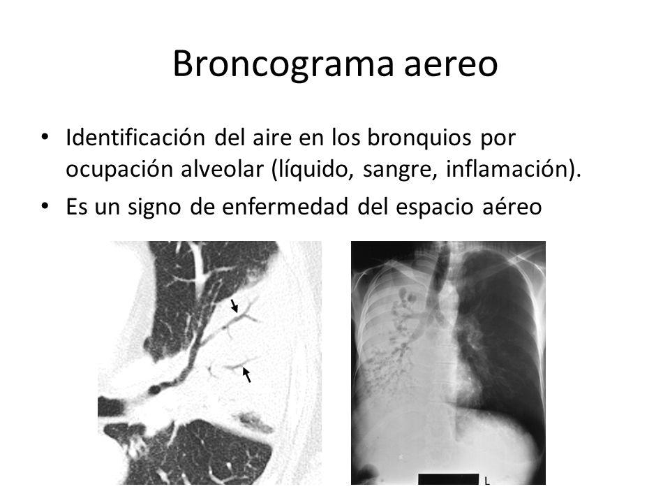 Broncograma aereo Identificación del aire en los bronquios por ocupación alveolar (líquido, sangre, inflamación). Es un signo de enfermedad del espaci