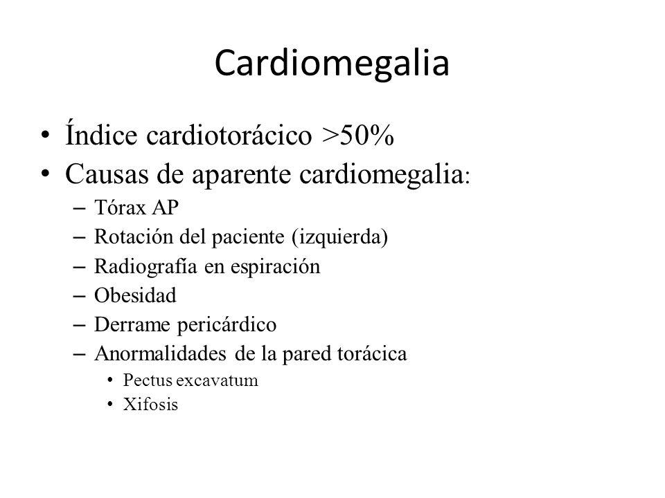 Cardiomegalia Índice cardiotorácico >50% Causas de aparente cardiomegalia : – Tórax AP – Rotación del paciente (izquierda) – Radiografía en espiración