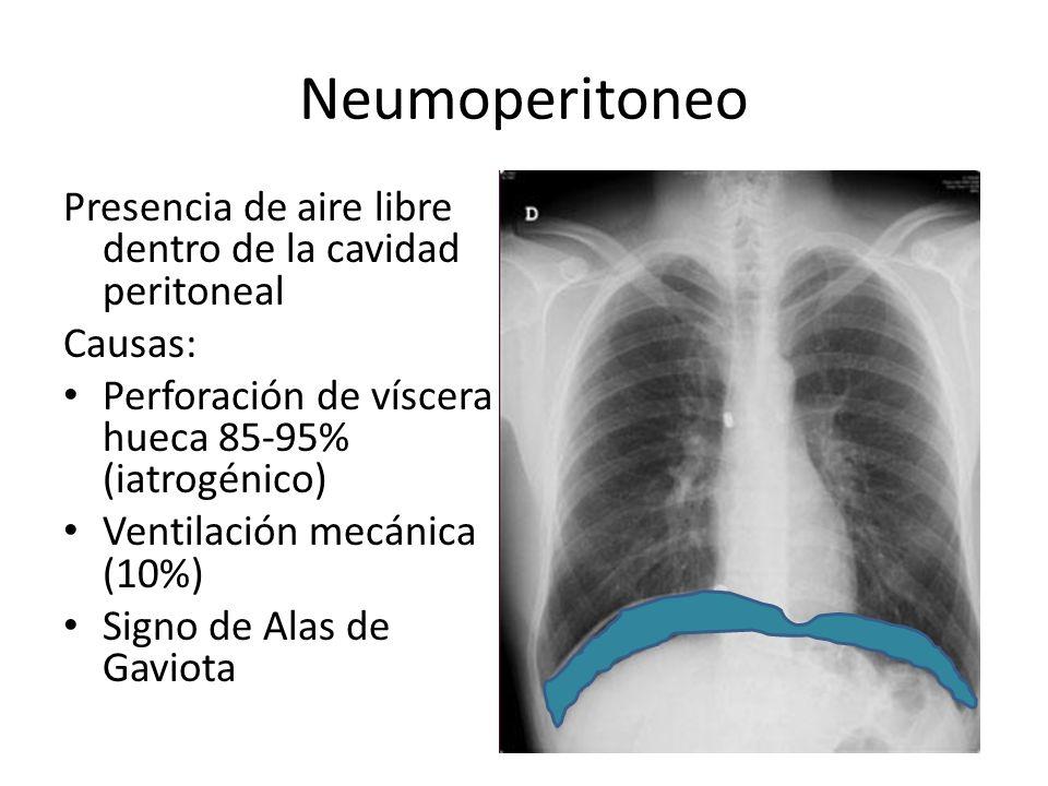 Neumoperitoneo Presencia de aire libre dentro de la cavidad peritoneal Causas: Perforación de víscera hueca 85-95% (iatrogénico) Ventilación mecánica